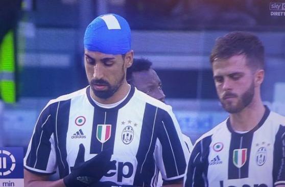 Sami Khedira utilizó extraño vendaje en partido de Serie A