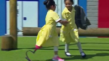 Así recibieron en escuela a niña que estrena pierna ortopédica