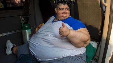 El hombre más obeso del mundo está listo para ser operado