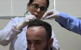 Turquía, el destino para realizarse transplantes de cabello