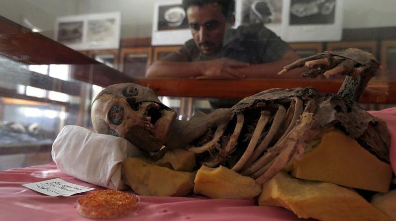 Un estudiante de Yemen mira una de las momias milenarias exhibida en la Universidad de Saná.  (Foto: AFP)